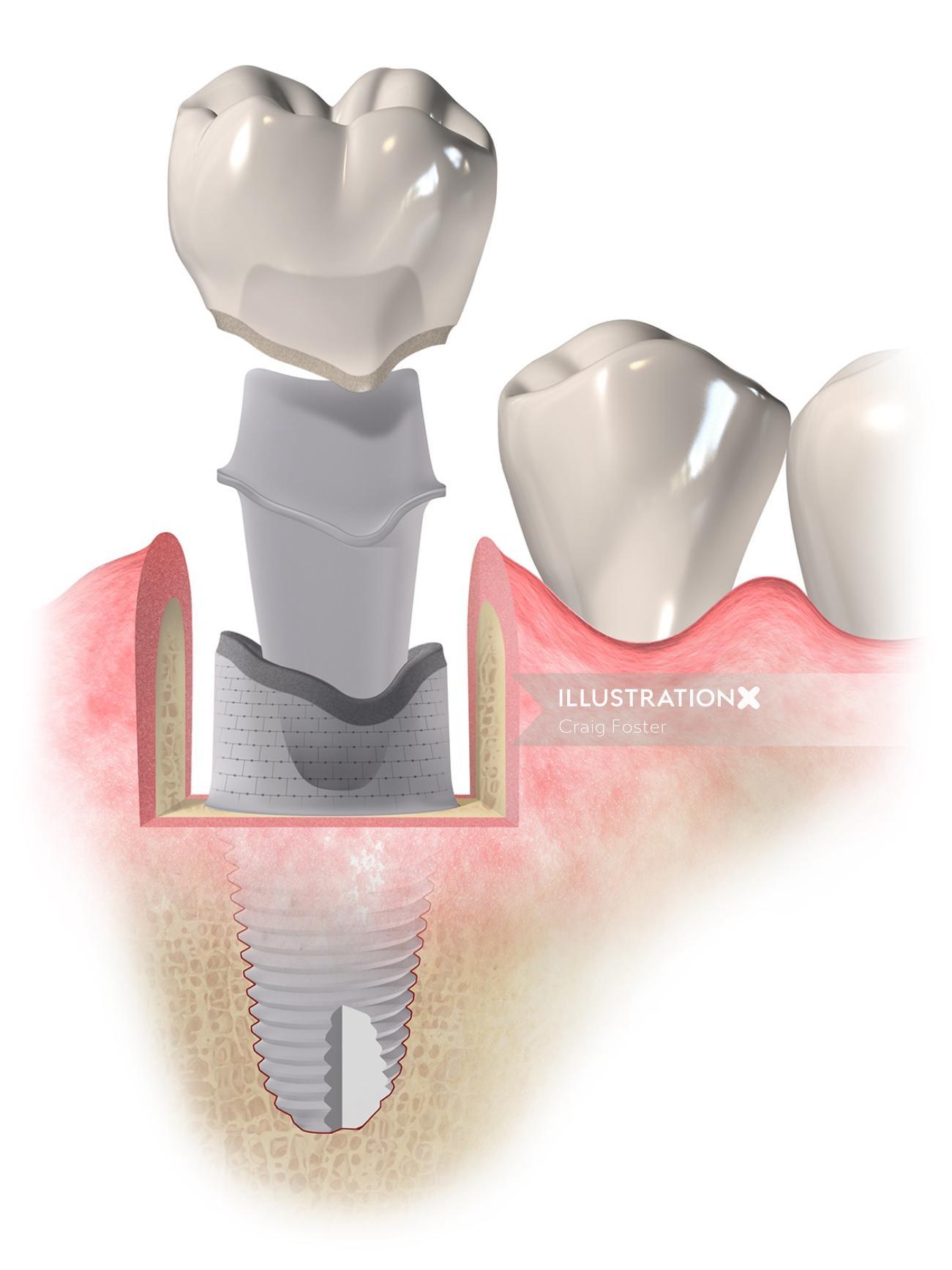 Medical illustration dental implant