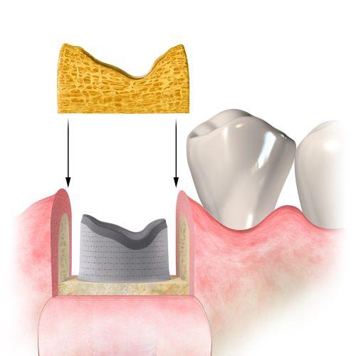 Medical illustration of dental procedure