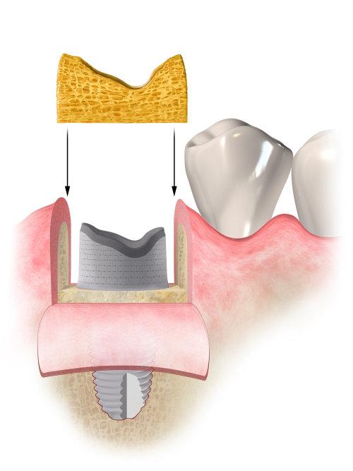 Illustration médicale de la procédure dentaire