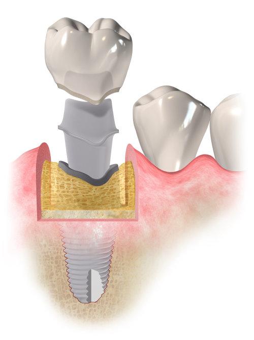 Illustration médicale de la procédure d'implantation