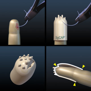 An illustration of Needle puncture surgery