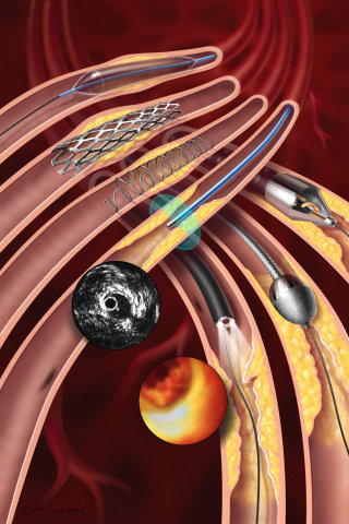 An illustration of endovascular illustration