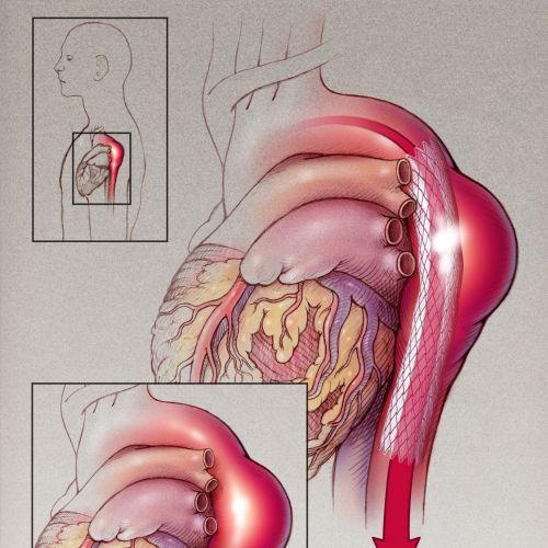 An illustration of thoracic aneurysm graft