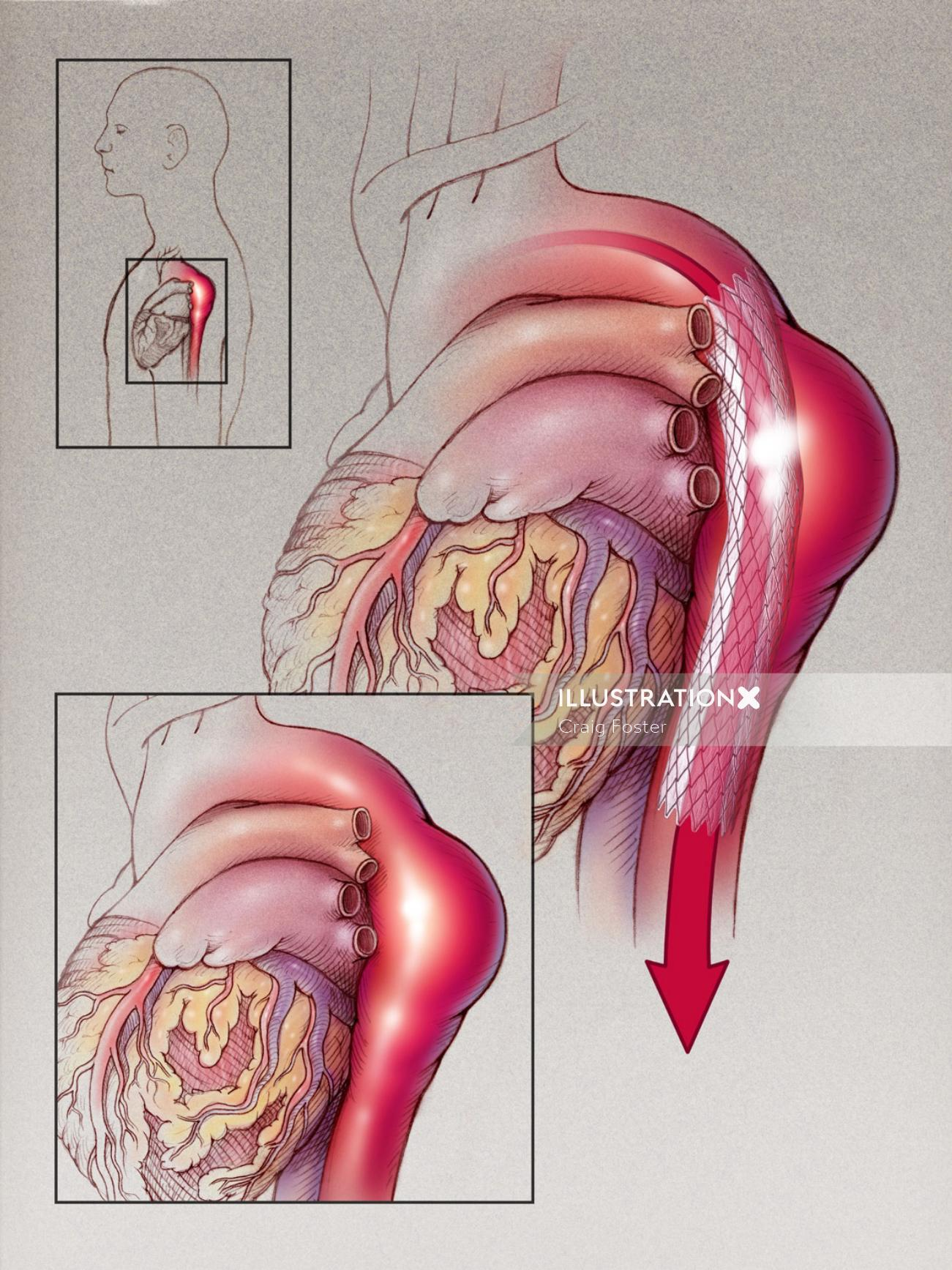 An illustration of thoracic aneurysm graft