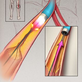 An illustration of atherosclerosis in the Leg