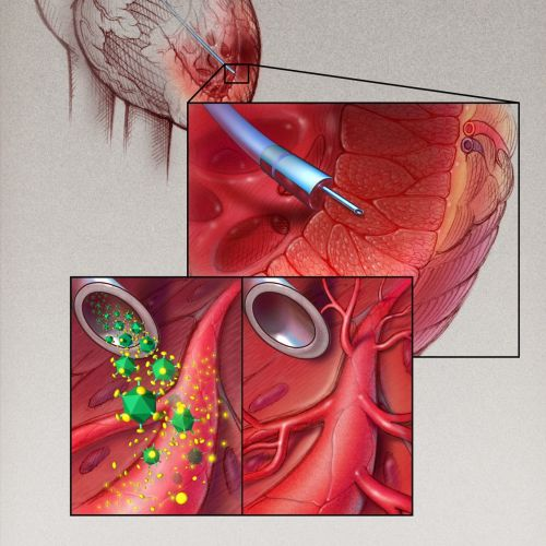 VEGF Therapy for Cardiac illustration