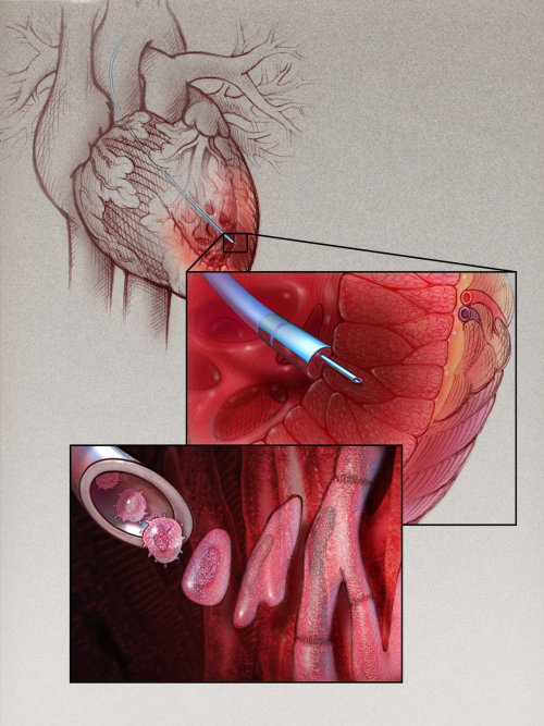 Myoblast Therapy for Cardiac illustration
