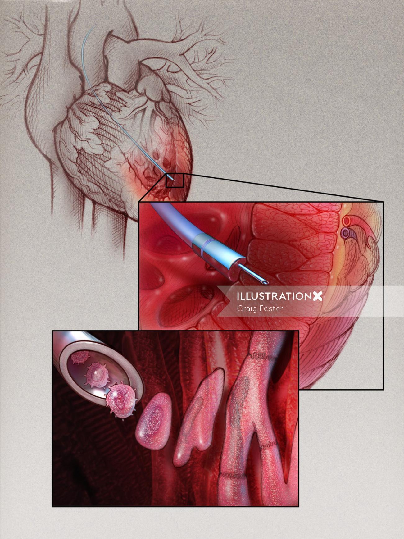 Myoblast Therapy for Cardiac illustration