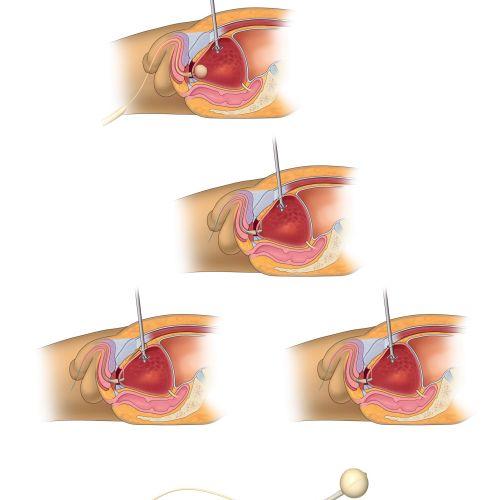 An illustration of bladder surgery hr