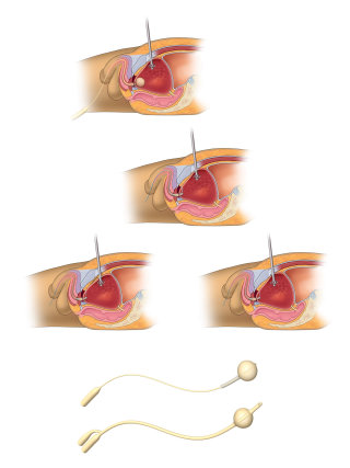 An illustration of bladder surgery hr