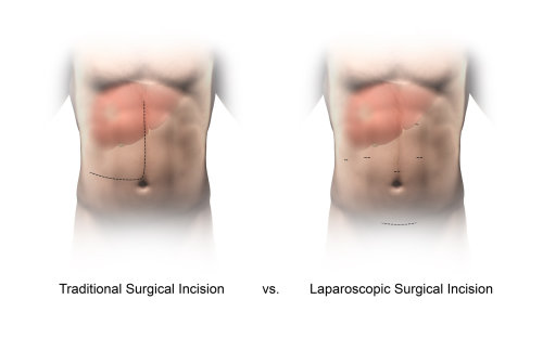 An illustration of incision comparison hr