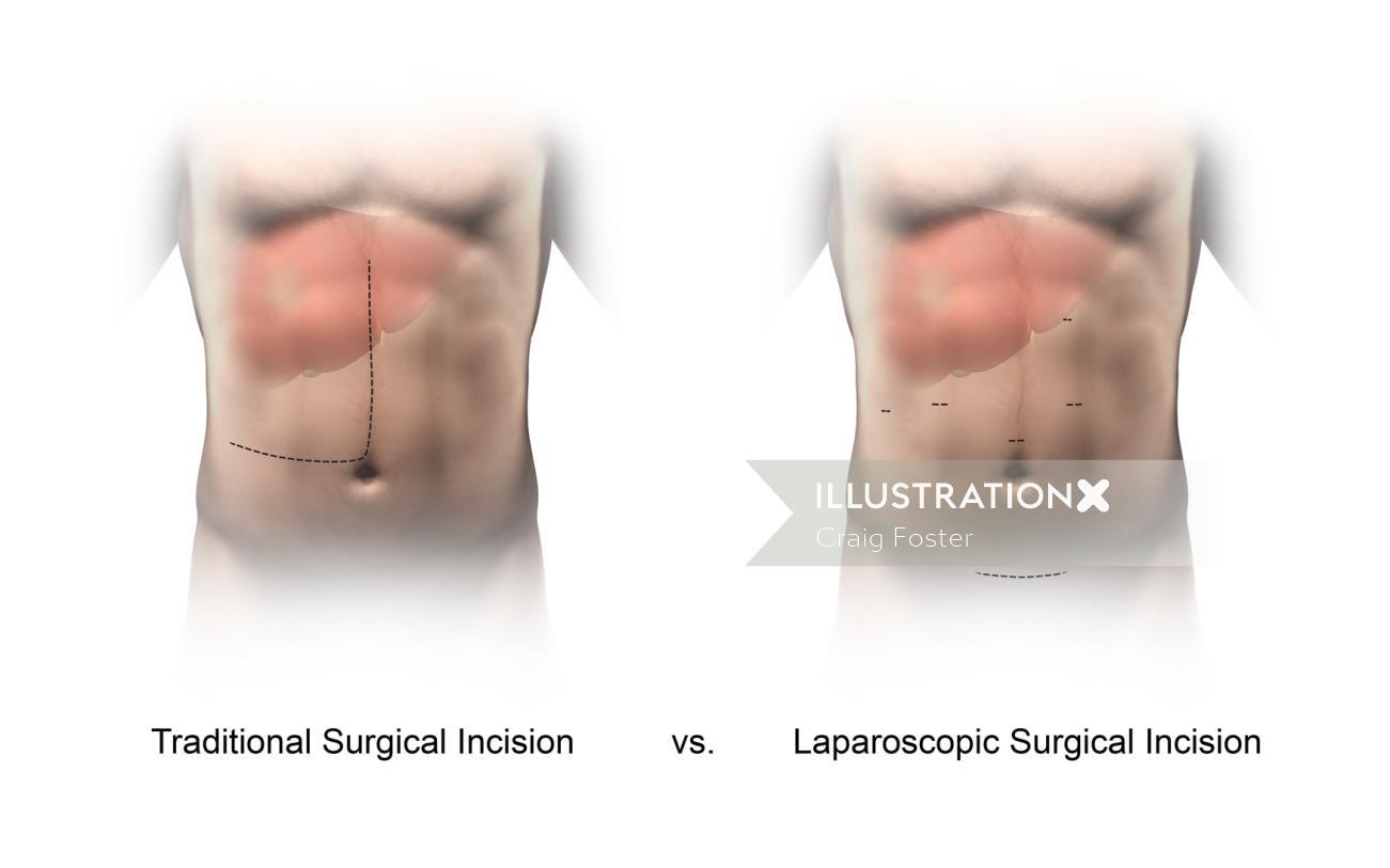 An illustration of incision comparison hr