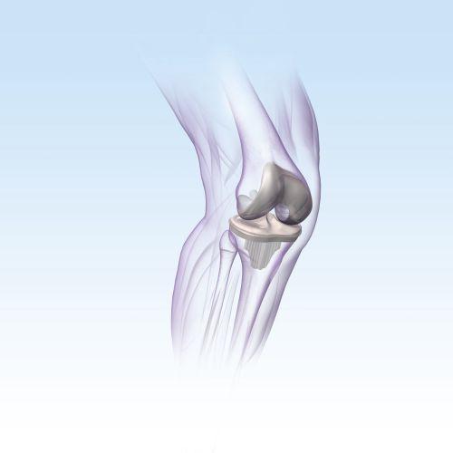 An illustration of KNEE implant hr