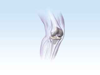 An illustration of KNEE implant hr