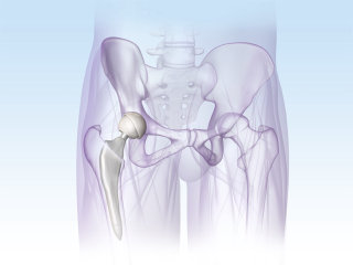 An illustration of PELVIS implant hr