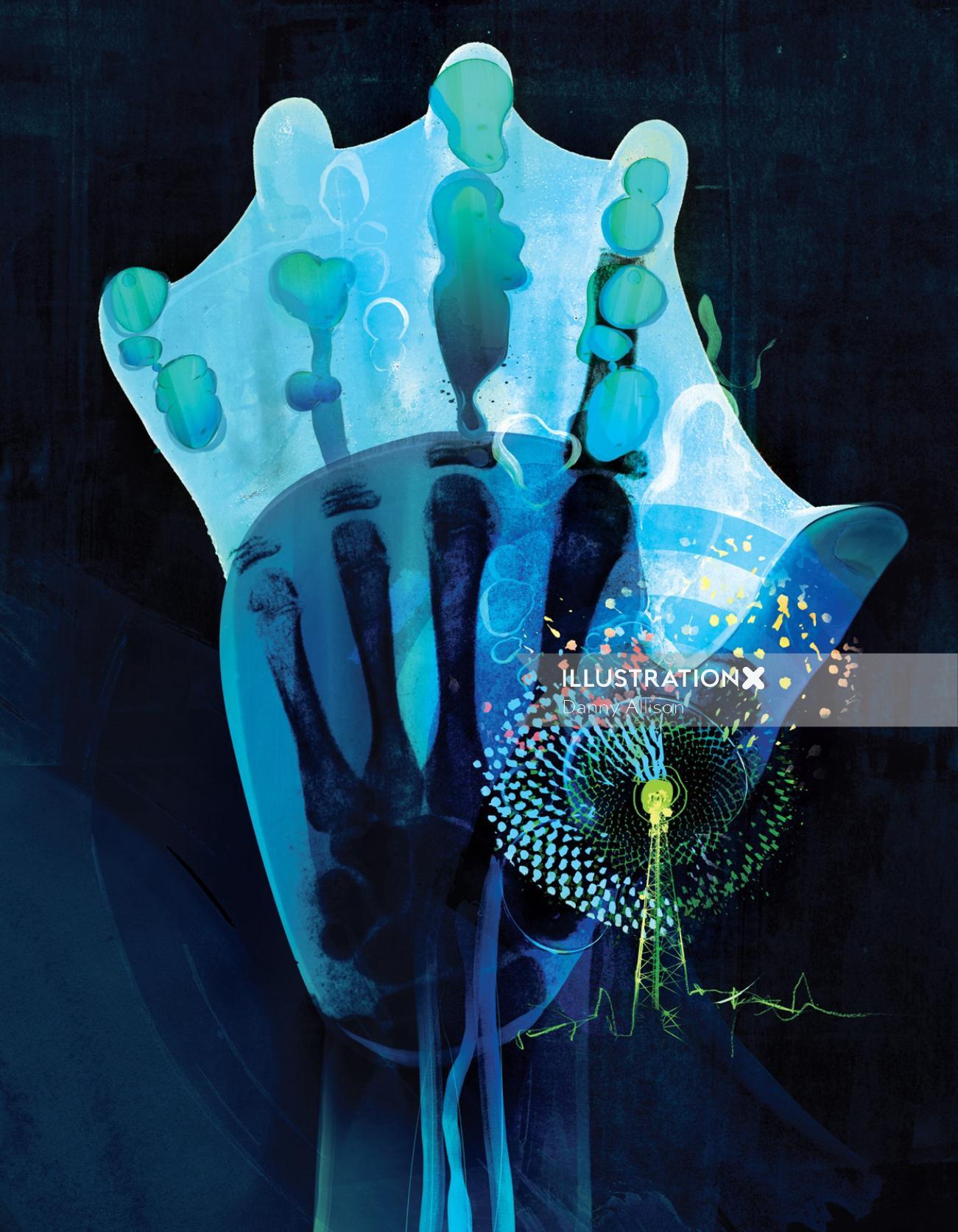 Medical hand xray