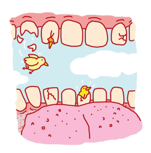 Ilustración digital de dientes rotos