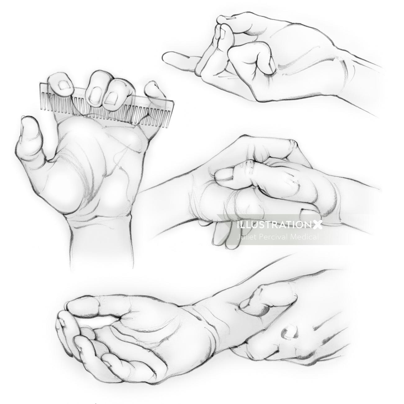 Acupressure2' from 'The Baby-Making Bible'  for hand