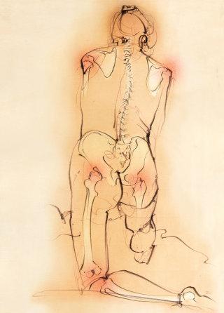 Osteoporosis, medical, anatomy, bones, skeleton, joints, inflammation, figure drawing
