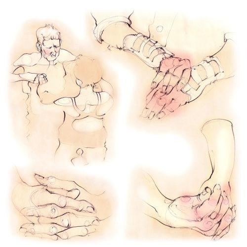 rheumatoid arthritis, hands, joints, patients, knuckles