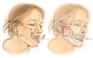 anatomy, hearing, head bones, skull, jawbone, face, teeth, mandible,zygomatic bone, condoyle