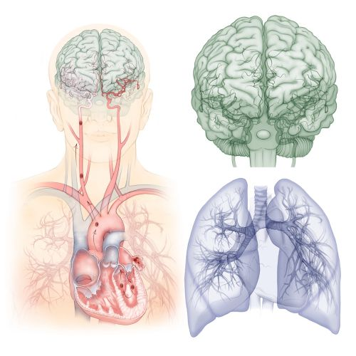 Heart, lungs, brain, anatomy, medical, thrombosis, blood clot, embolism, stroke, thrombosis