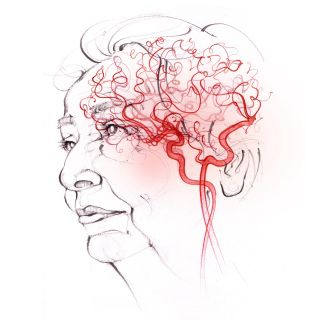 vascular dementia, anatomy, face, head, cerebral circulation