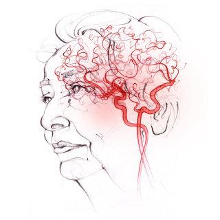vascular dementia, anatomy, face, head, cerebral circulation