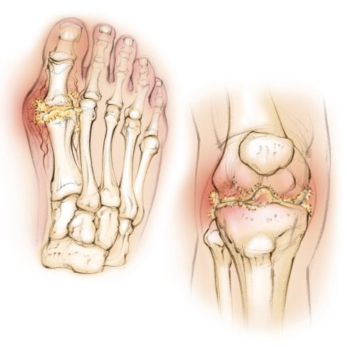 anatomy, gout, knee, foot, uric acid, bones, patella, tibia, fibula, inflammation