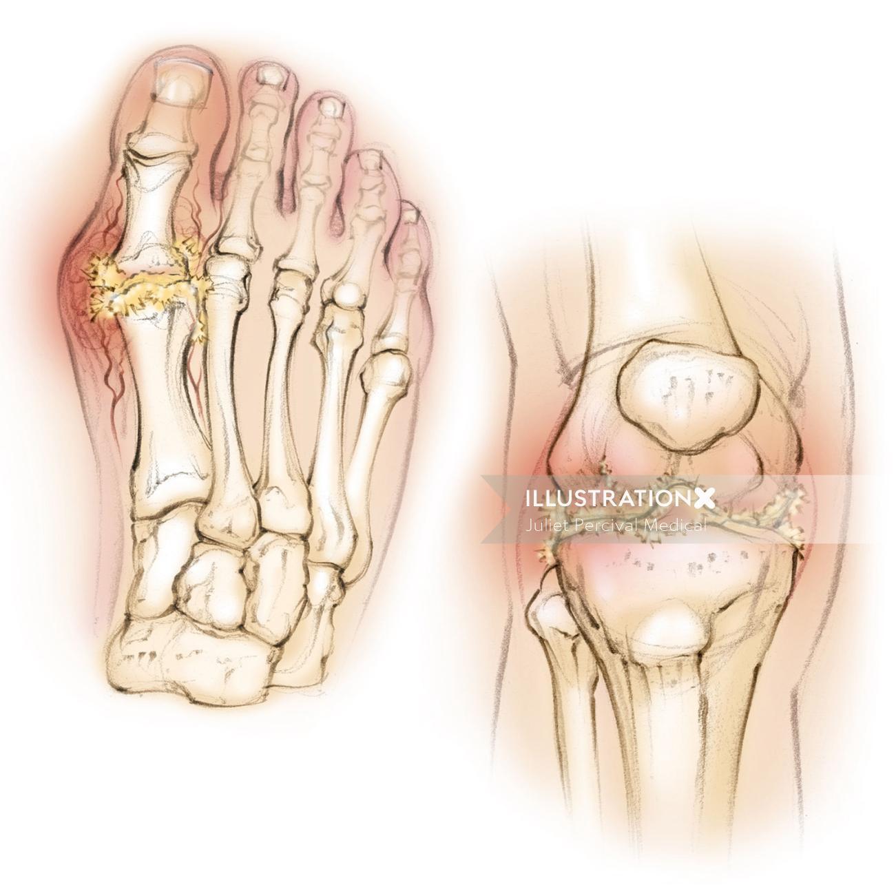 Gout Details Illustration By Juliet Percival Medical