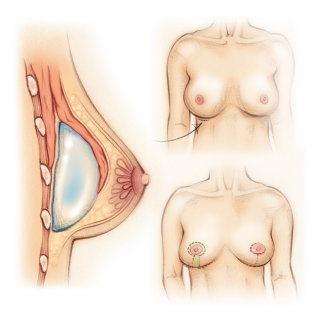 breast implant, cosmetic surgery, plastic surgery, breast lift, medical, traditional