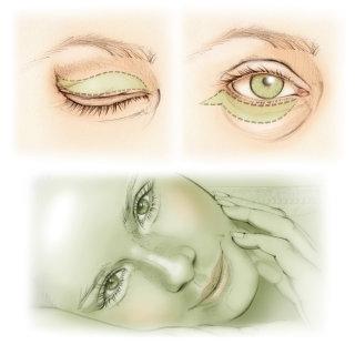 blepharoplasty, eyelid, cosmetic surgery, eye lift