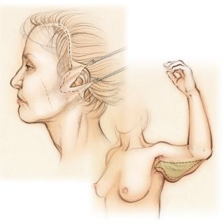plastic surgery, face lift, arm lift, cosmetic surgery