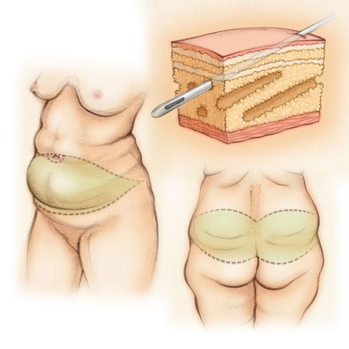 tummy tuck, cosmetic surgery, back lift, subcutaneous fat