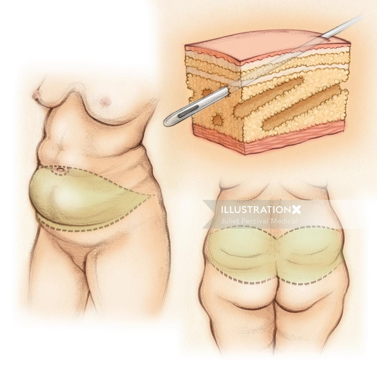 tummy tuck, cosmetic isurgery, back lift, subcutaneous fat