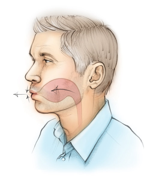 Chronic obstructive pulmonary disease,  patient, breathing, pursed lips