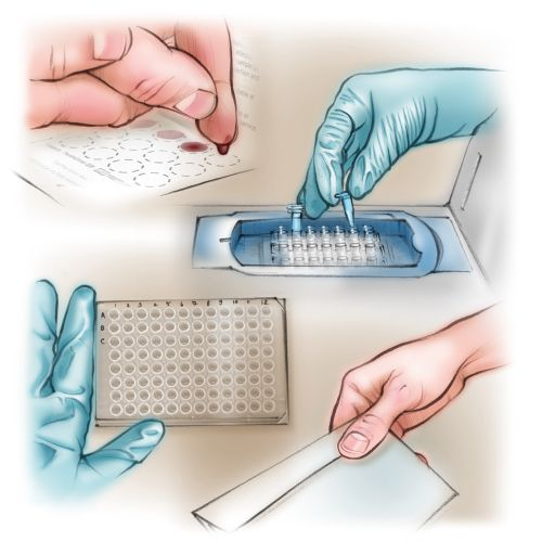blood test, laboratory, ELISA, test results