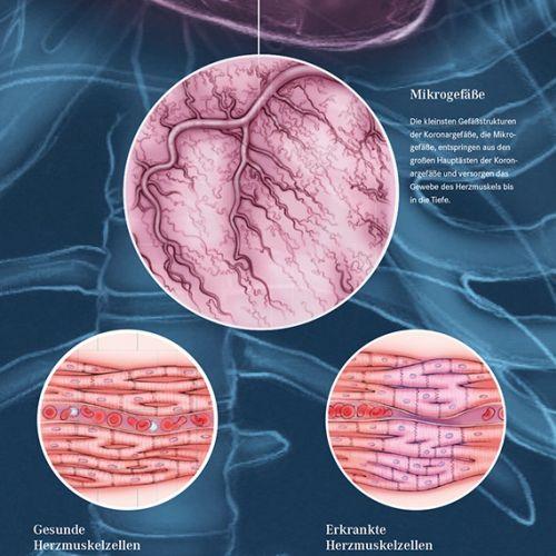 Juliet Percival Medical Infografía Illustrator