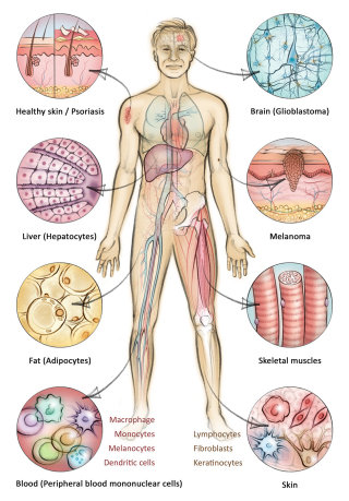 histology, cells, melanoma, skin, liver, anatomy, blood