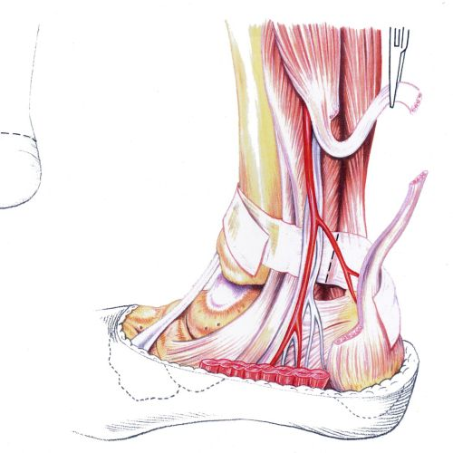 An illustration of lengthening of the achilles tendon