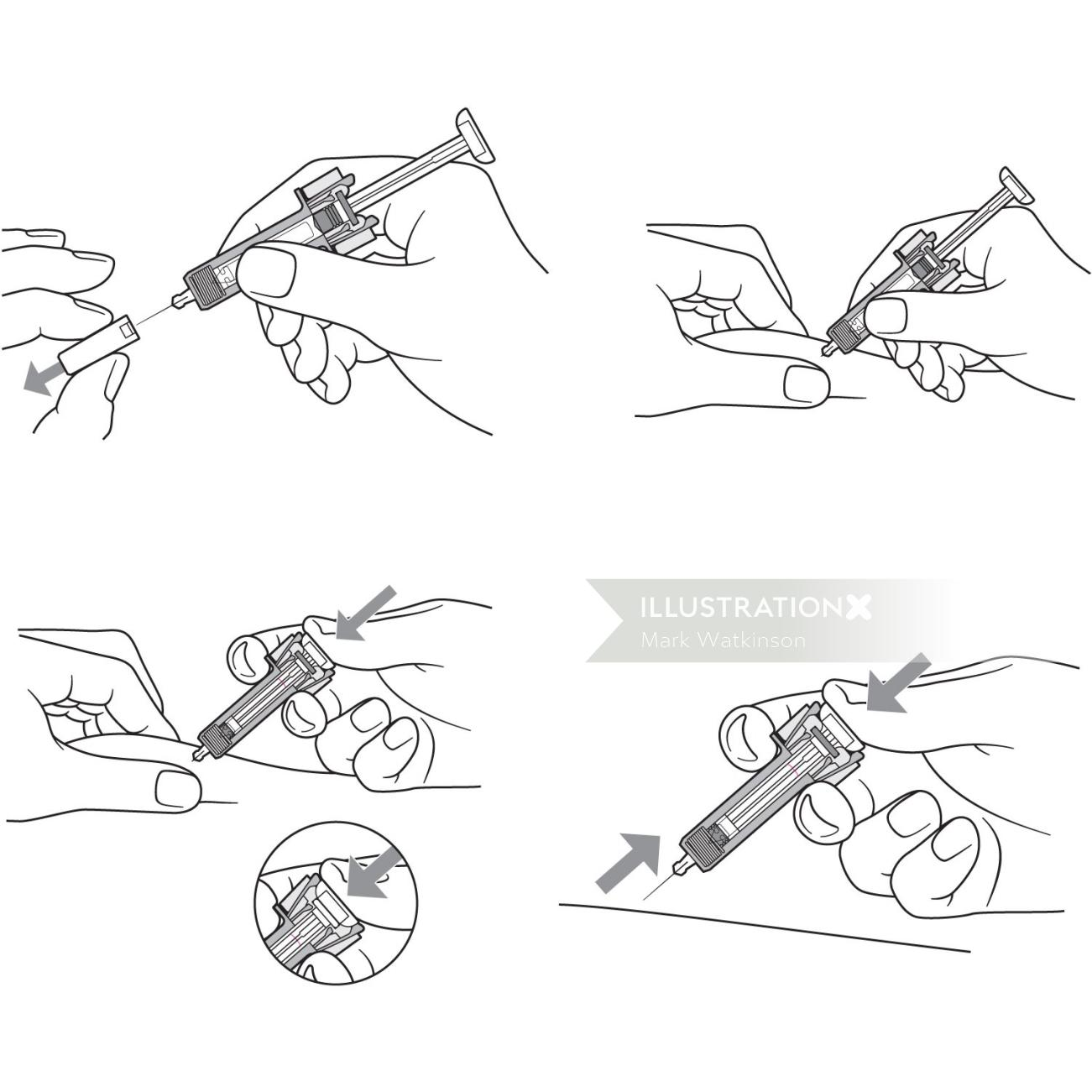 An illustration of injection