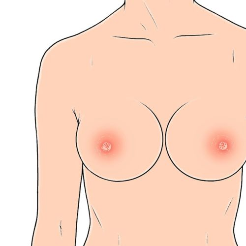 Medical illustration of swollen nipples
