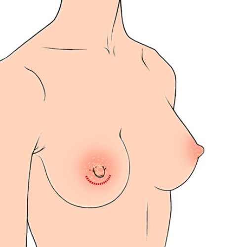 An illustration of woman breast