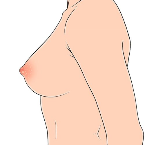 Woman breast illustration by Montana Forbes