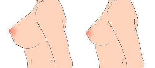 女人乳房图蒙大拿州福布斯
