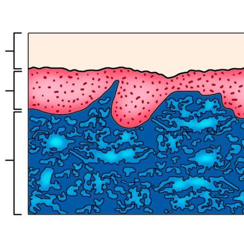Skin illustration | Medical illustration collection