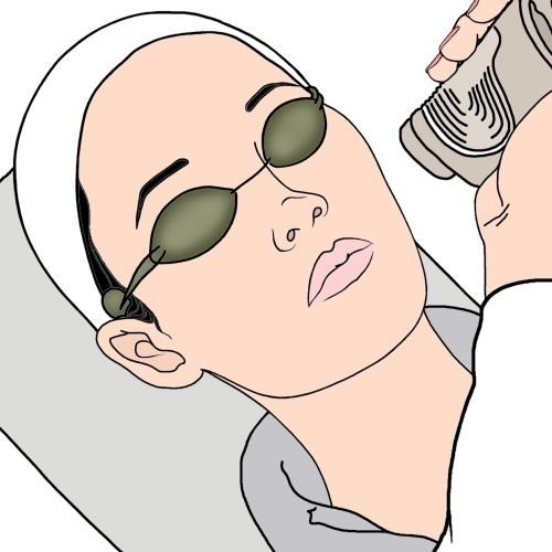 illustration of doctor doing laser skin treatment