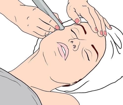 蒙大拿州福布斯的激光皮肤治疗插图
