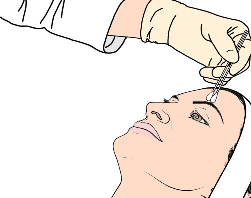 Medical illustration of woman face