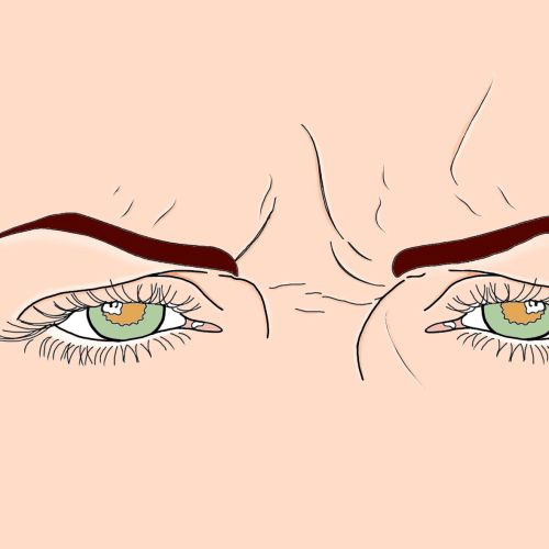 Medical illustration of wrinkled forehead